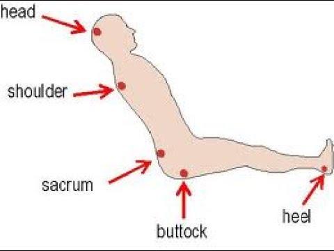 شكل يوضح مناطق الجسم المُعرّضة للاصابة بقرحة الفراش في حالة المريض على كرسي متحرك